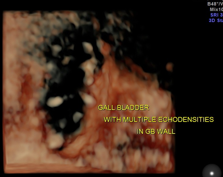 CHOLESTEROLOSIS OF THE GALLBLADDER- STRAWBERRY GALL BLADDER (4/6)