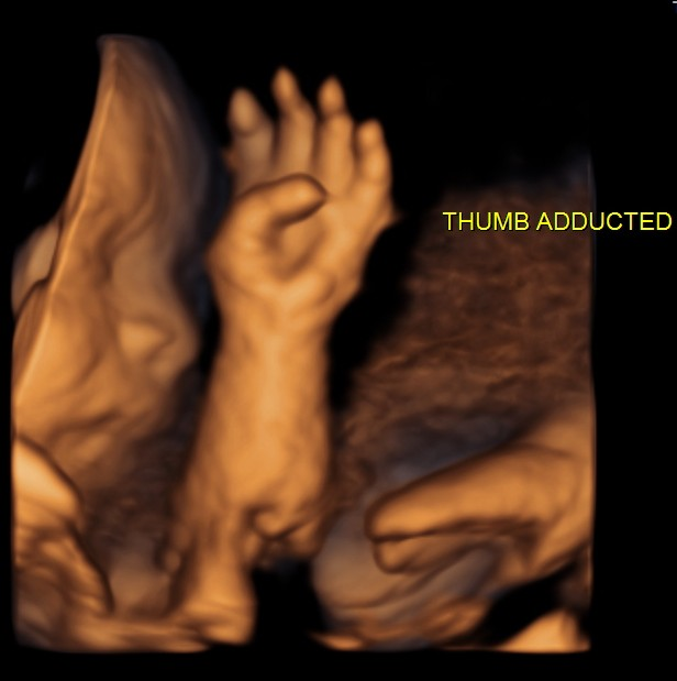 persistently adducted left thumb