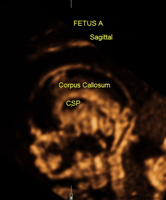 sagittal view of normal fetal head 3 d view
