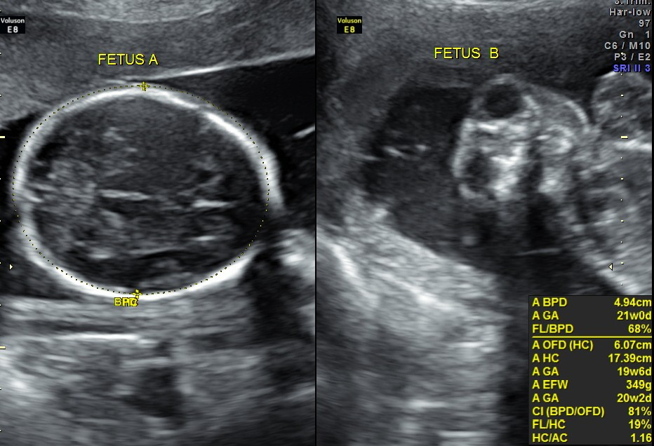 Mono chorionic , di amniotic twin pregnancy with anencephaly of one fetus (2/6)