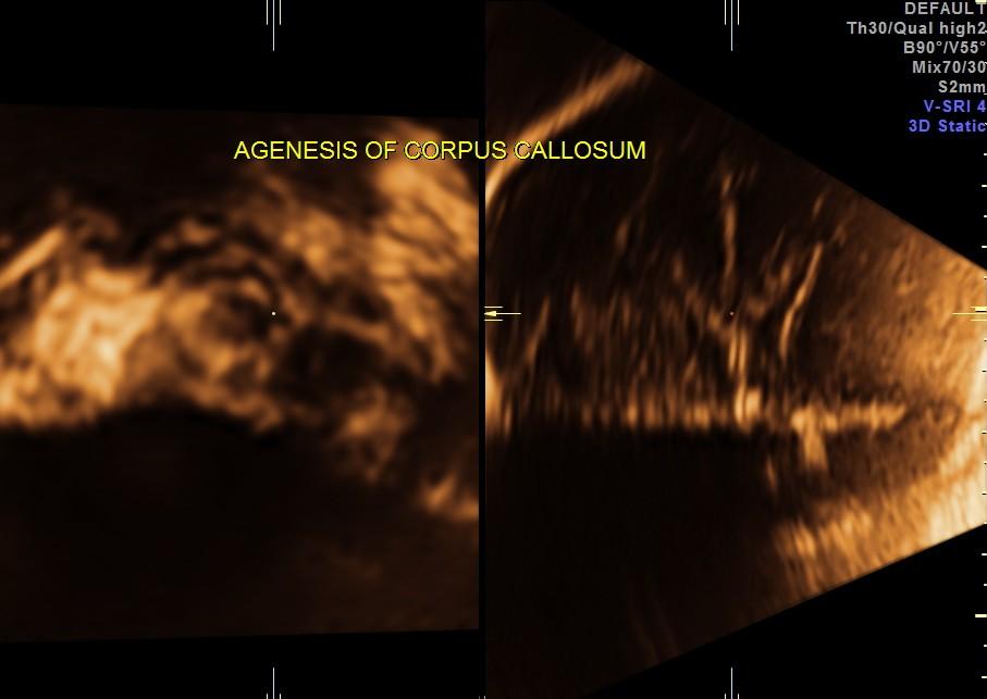 Agenesis of Corpus Callosum (4/5)