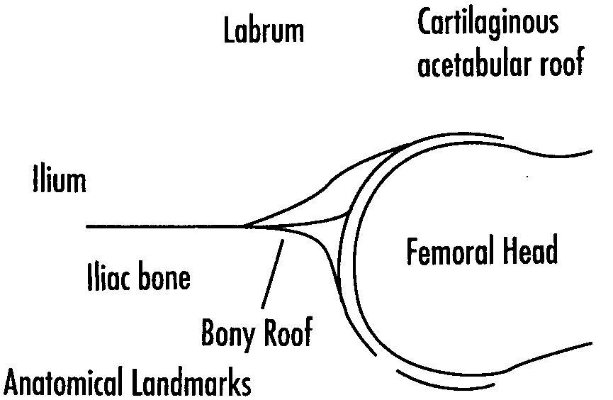 infant hip 1
