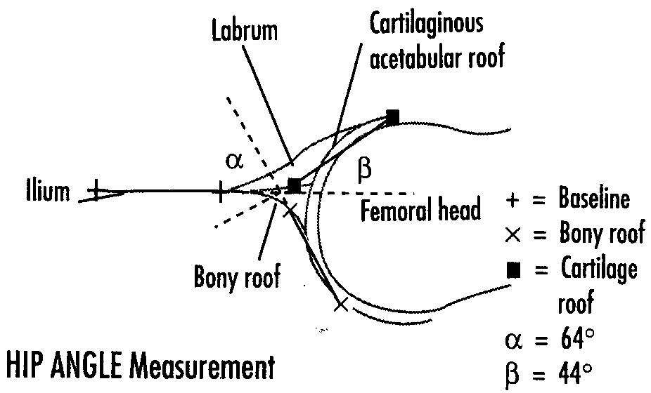 Developmental Dysplasia of HIP (D.D.H.)   Looking Through a Transducer