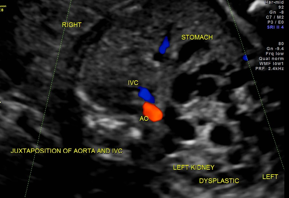 juxtaposition of aorta and ivc in a case of right isomerism ( renal dysplasia also seen )