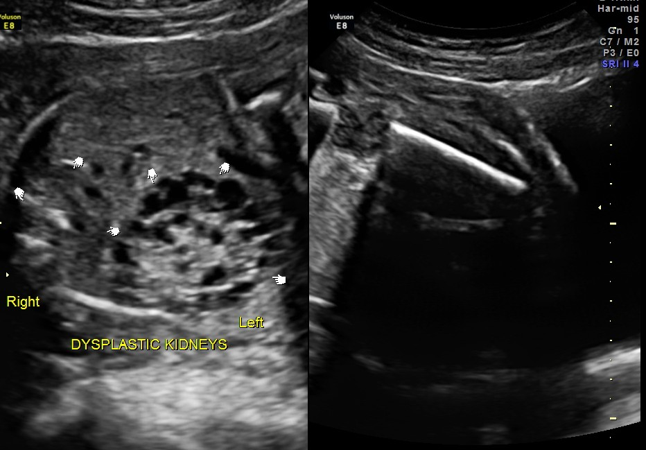 renal dysplasia - left is grossly enlarged , right is mildly enlarged