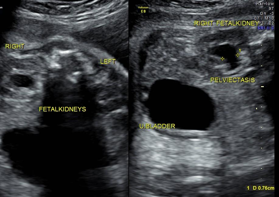 rt renal pelviectasis