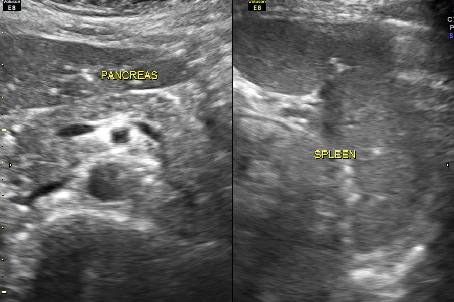 Appendicular mass (2/6)