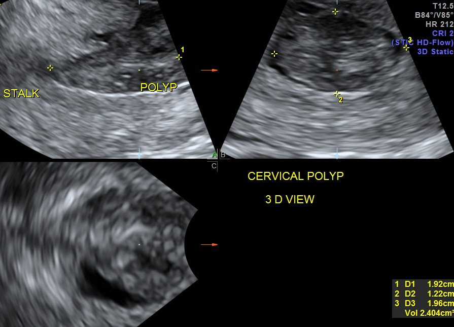 multi planar image showing the polyp