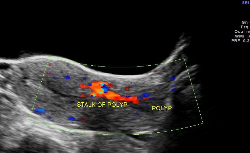 trans abdominal colour doppler showing  a long vascular stalk