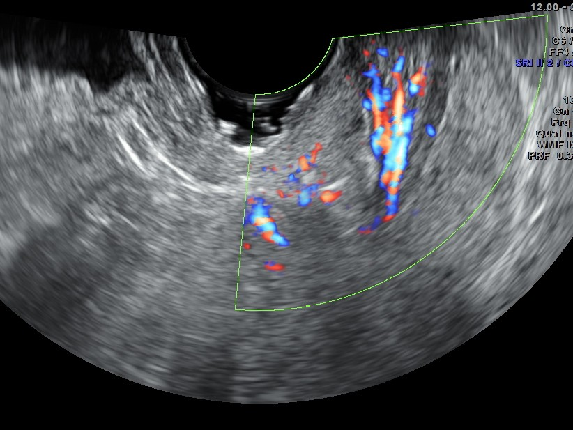 the increased vascularity of the polyp in the cervix can be seen