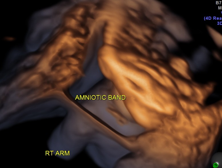 OBST HYDROCEPHALUS  AMNIOTIC BAND_33