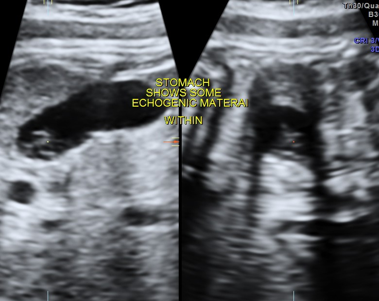 ECHOGENICITY WITHIN FETAL STOMACH -PSEUDOMASS WITHIN FETAL STOMACH (1/3)