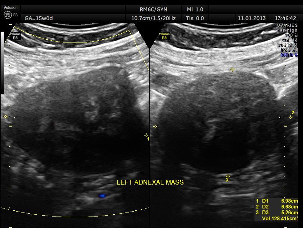 Dating u/s ultrasound in Melbourne