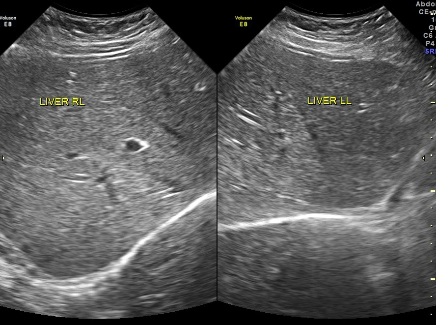 UNEXPLAINED ANEMIA IN A YOUNG MAN (2/6)