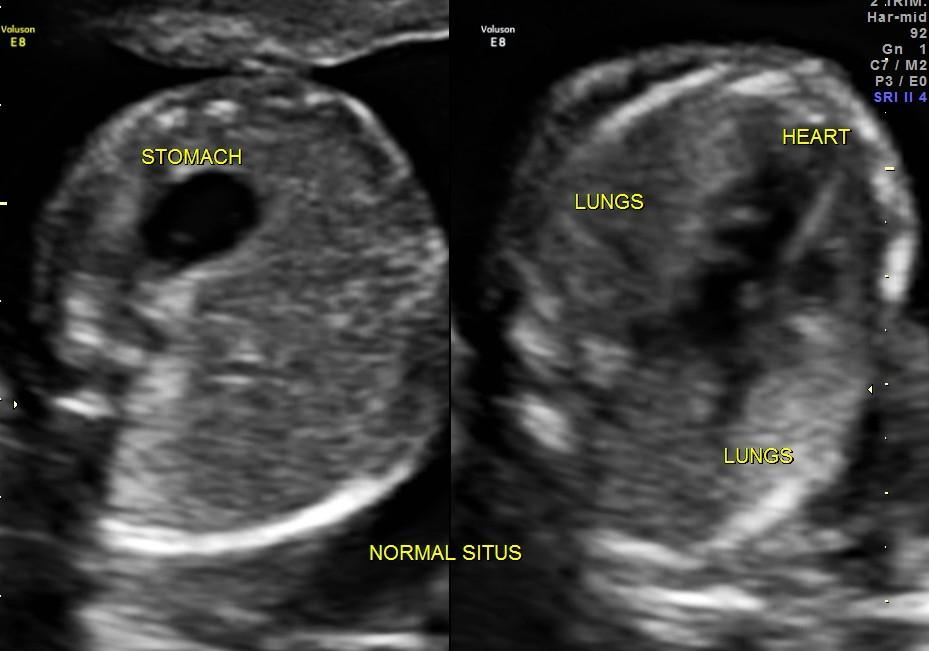 Can Ostium Secundum Atrial Septal Defect diagnosed antenatally ? (1/6)