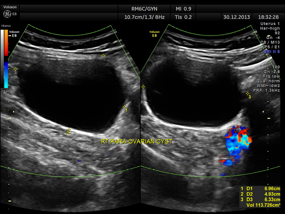 RIGHT SIDED ABDOMINAL PAIN AND DYSPEPSIA (5/6)