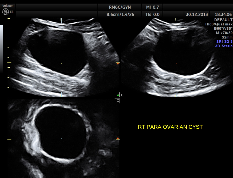 RIGHT SIDED ABDOMINAL PAIN AND DYSPEPSIA (6/6)