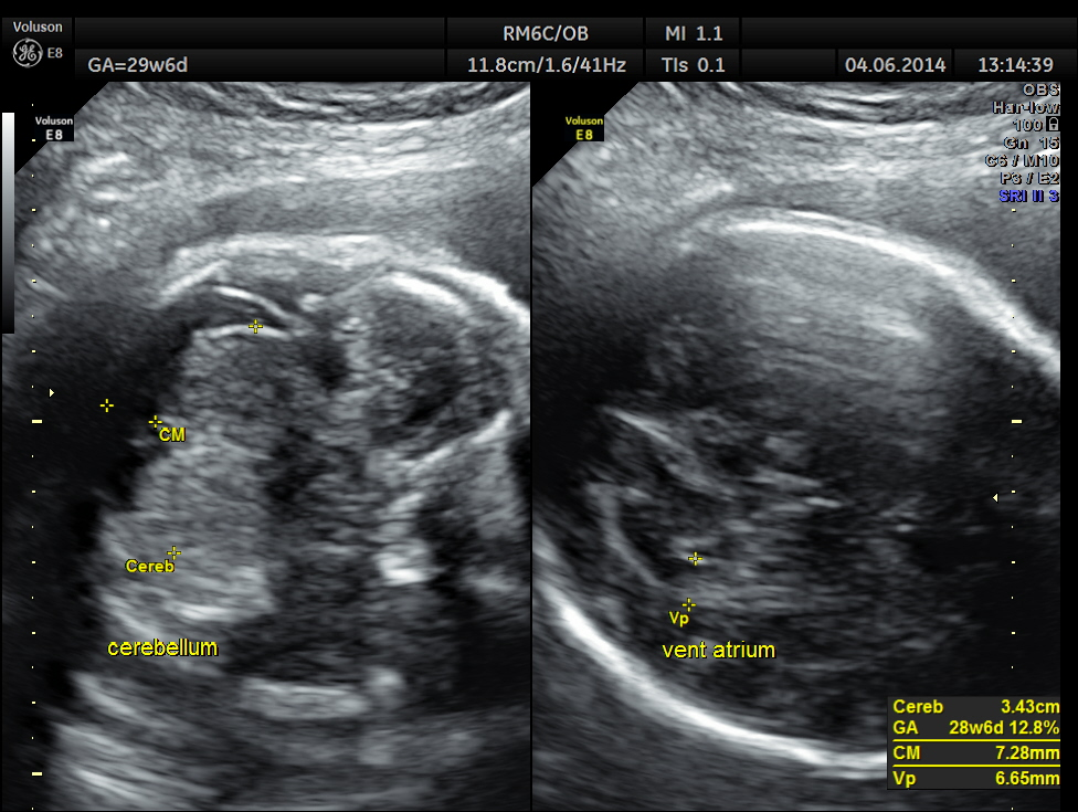 IUGR - PLACENTOMEGALY - ABNORMAL DOPPLER - UTERO PLACENTAL INSUFFICIENCY (4/6)