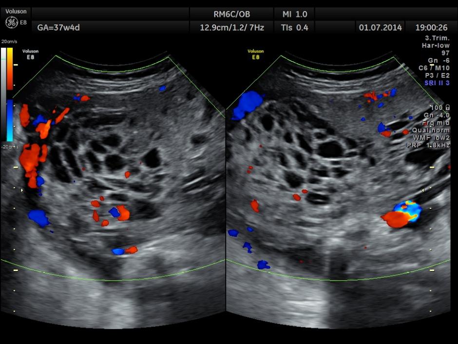 placental mass follow  up_1