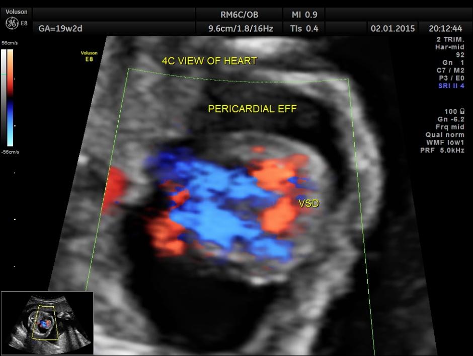 PERI EFF VSD LT HEART HYPO_15