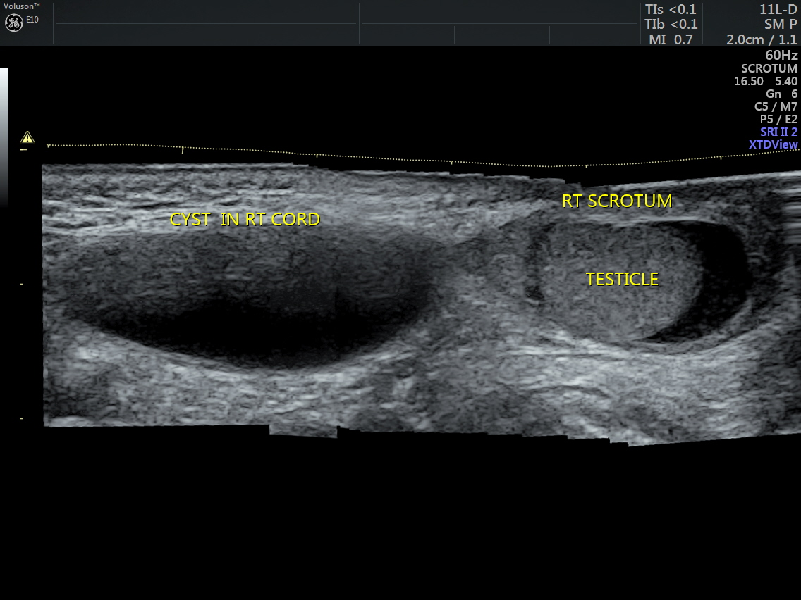 scrotal ultrasound